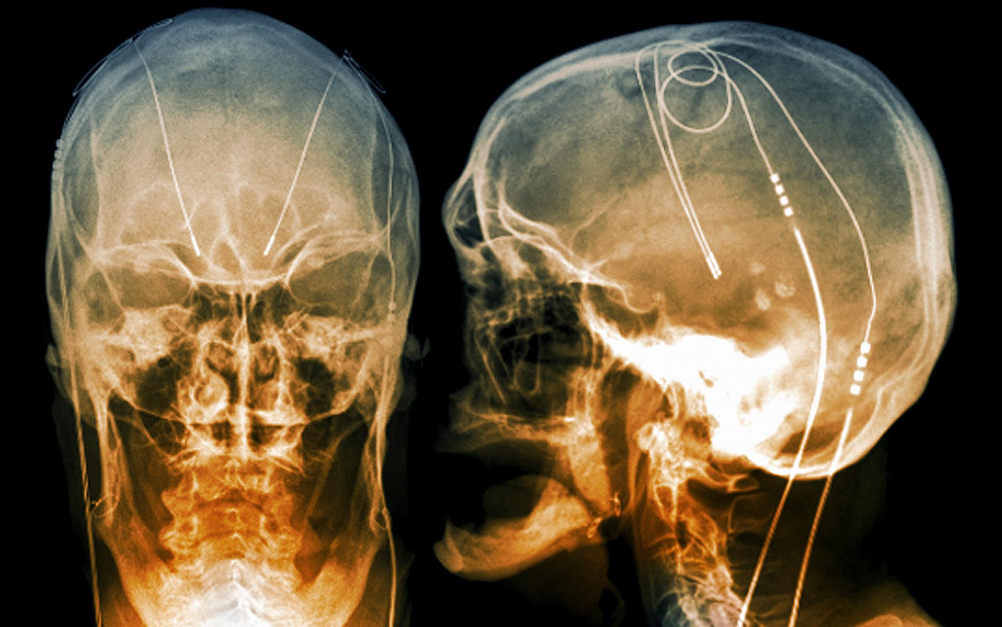Deep brain stimulation | Aeon