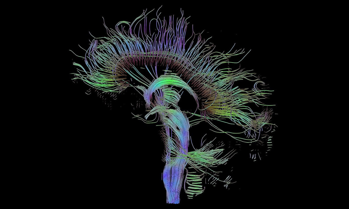 Neural pathways in the brain. <em>Photo courtesy Wikipedia</em>