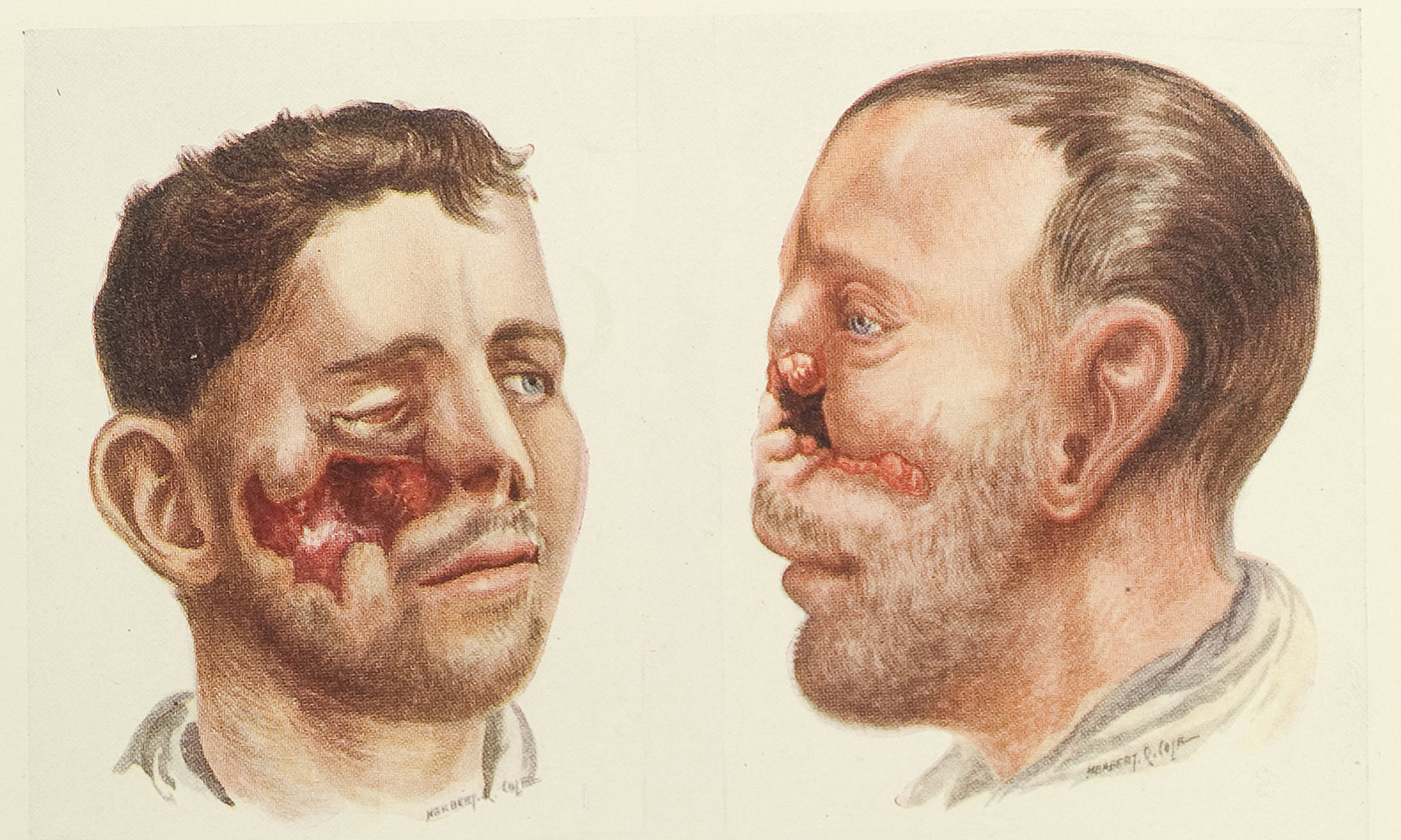 Disfigured men returning from WW1 became a common sight. From H.P. Pickerill's  <em>Facial Surgery</em> 1924/Wellcome Images