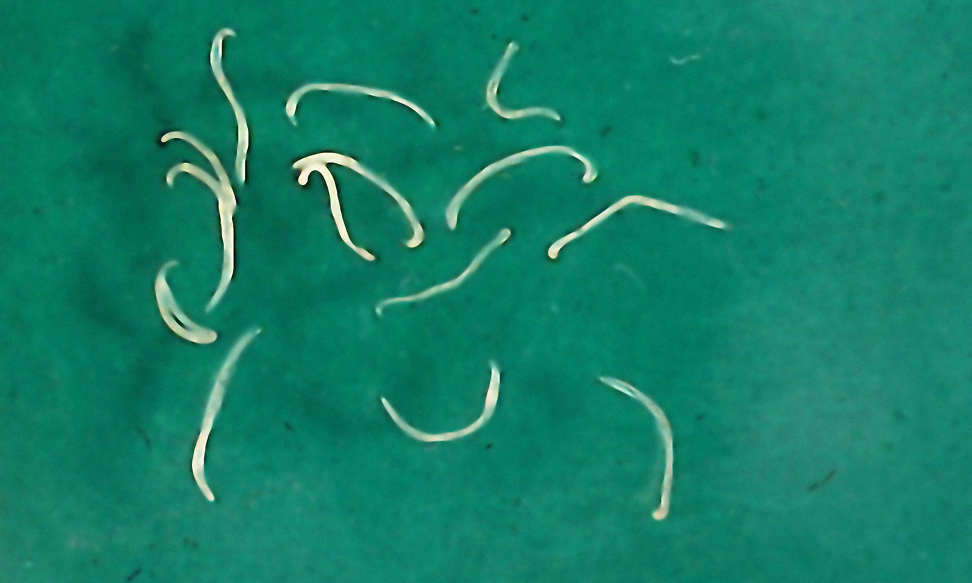 Parasitic hookworms. <em> Photo by Getty</em>